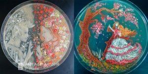 "Победитель конкурса 2018 года ""The Battle of Winter and Spring» / Ana Tsitsishvili / American Society for Microbiology"